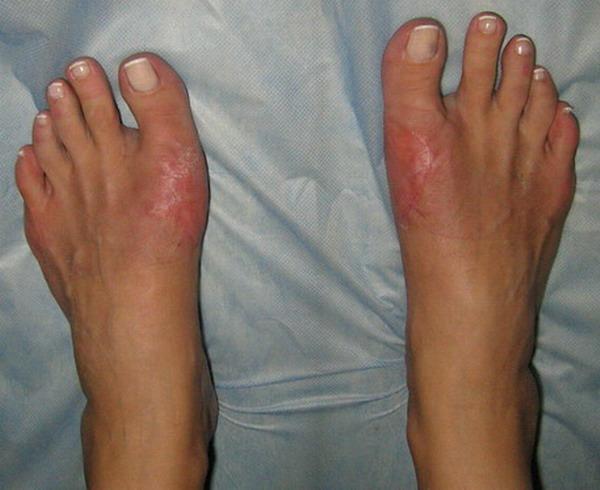 Болят мышцы ног возле паха