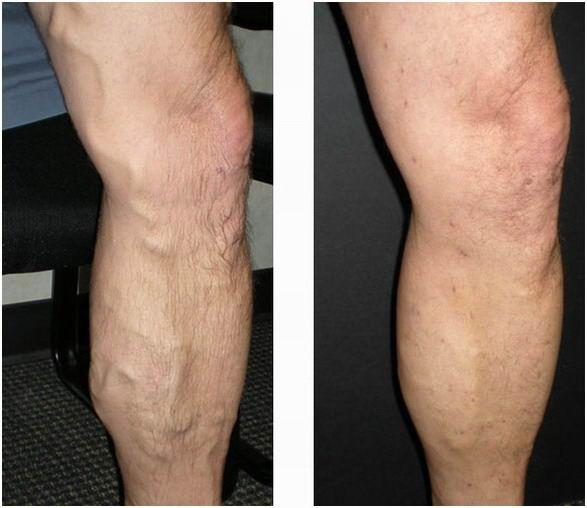 Лекарства от болей в ногах варикоз