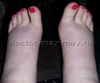 отеки ног фото