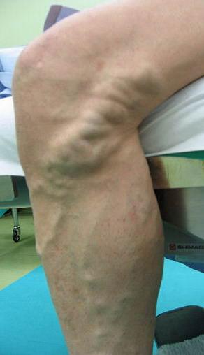 Ретикулярный варикоз нижних конечностей причины симптомы лечение