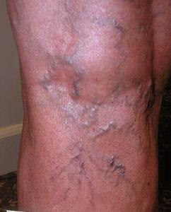 Сайт о варикозном расширении вен симптомы и лечение варикоза