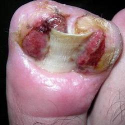 Титановая нить коррекция вросшего ногтя